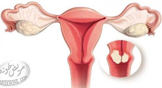 سرطان-سرطان دهانه رحم-رحم-دهانه رحم-روابط جنسی-ویتامین-ویتامین آ-اسید فولیک-عفونت های تناسلی-زگیل تناسلی-ویروس ایدز-ایدز-زایمان