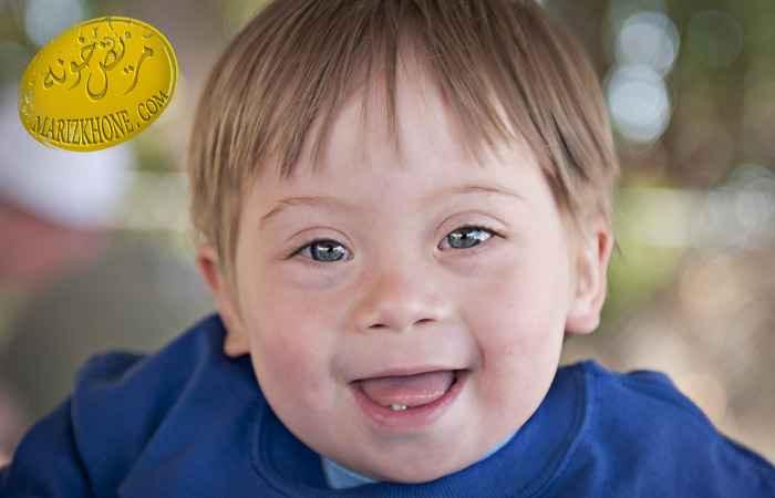 مشخصات بالینی کودکان مبتلا به سندروم داون