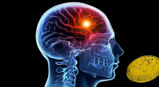 سکته مغزي--مريض خونه-بيمارستان-marizkhone-- گیجی- سرگیجه- احساس ضعف- علائم بروز سکته