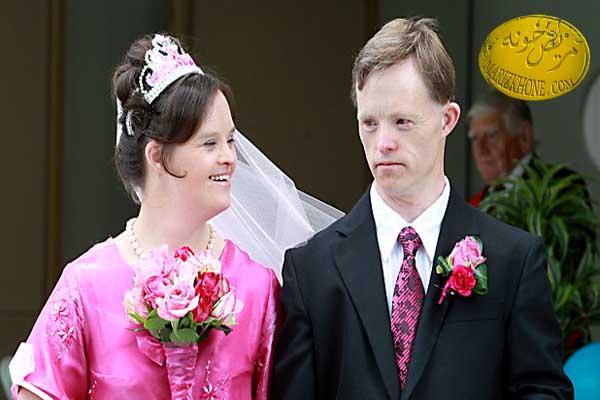 مشخصات بالینی کودکان مبتلا به سندروم داون(2)-ازدواج افراد مبتلا به سندروم داون-بیماری سندروم داون-قاعدگی در دختران سندروم داون-قد و وزن در افراد سندروم داون