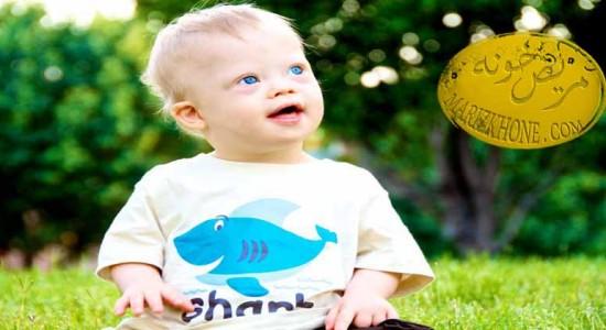 بیماری های شایع در افراد سندروم داون 1-بیماری های عفونی-عفونت ریوی یا ذات الرّیه- کودکان سندروم داون- بیماری های قلبی مادرزادی- بیماری کوشین-هترو تروپیا