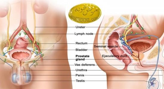 چگونگی مقابله با سرطان پروستات ,پیشگیری از ابتلا به سرطان پروستات,راههای درمان سرطان پروستات,چگونگی مقابله با سرطان پروستات,سرطان پروستات,محمدرضا صائینی
