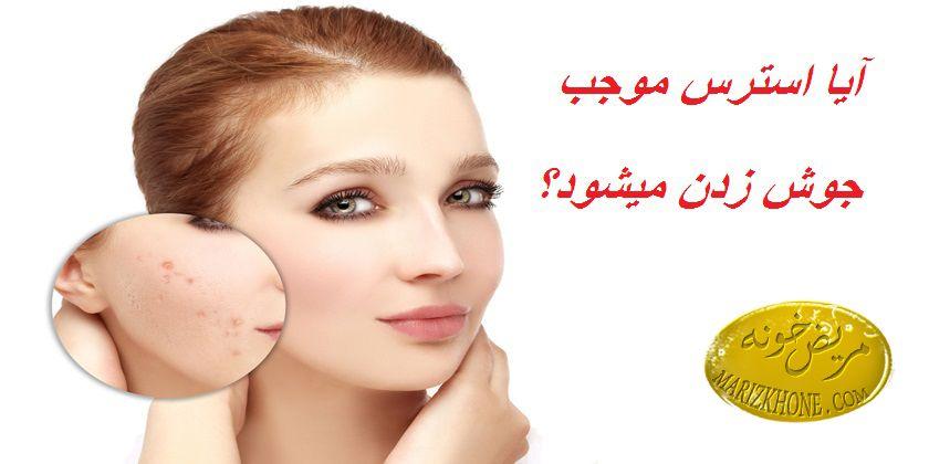 درمان جوش ناشی از استرس