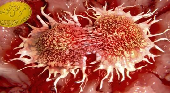 استفاده از سلول های شکارچی بجای شیمی درمانی ,علت ابتلا به تومور گلیوبلاستوما,درمان بیماران مبتلا به تومور گلیوبلاستوما,عوارض داروهای شیمیدرمانی,درمان سرطان