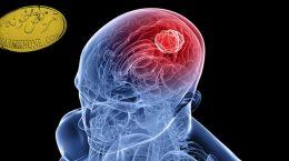 بیماری تومور مغزی