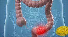 سرطان روده بزرگ و راستروده