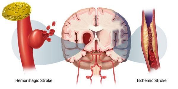 علائم اصلی سکته مغزی