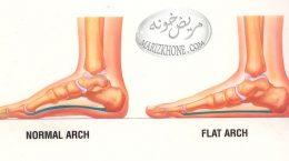 تشخیص صافی کف پا در کودکان
