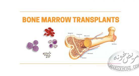 درمان سرطان با پیوند مغز استخوان