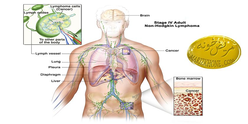 داروی درمان بیماری لنفوم هاجکین