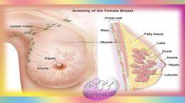 علائم سرطان سينه در زنان
