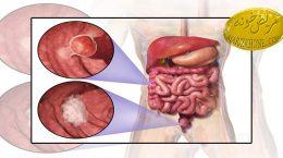 سرطان روده و درمان آن