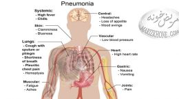درمان پنومونی