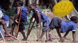 علائم فلج اطفال چیست
