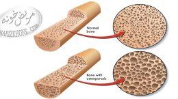 کرم ضد آفتاب عاملی برای ابتلا به پوکی استخوان است