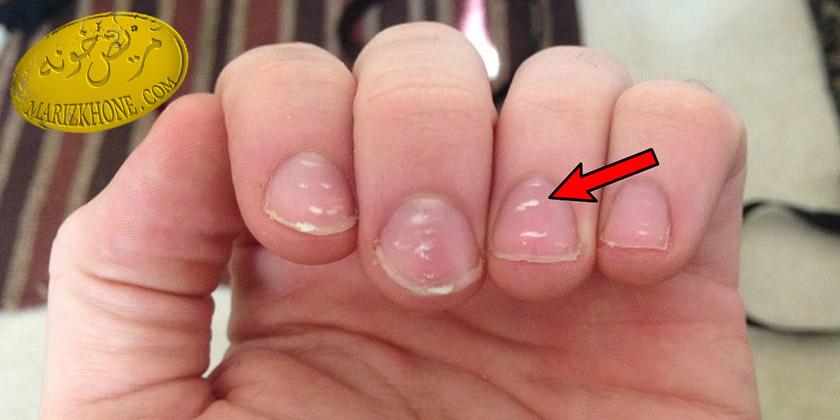 رفع لکه های سفید روی ناخن