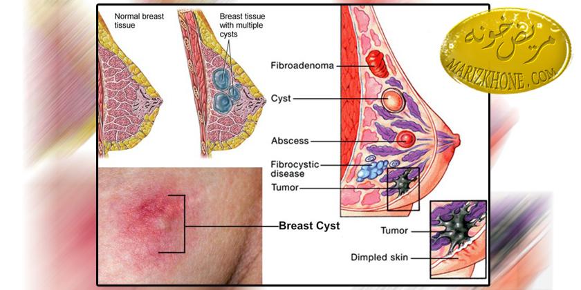درمان کیست سینه