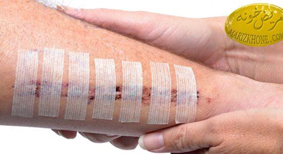 درمان زخم های ایجاد شده روی بدن