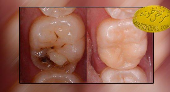 تخریب دندان ها