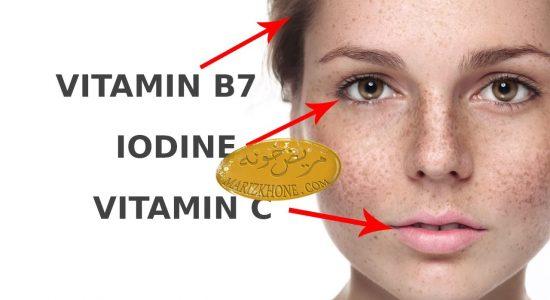 کمبود ویتامین و تاثیر آن بر روی صورت